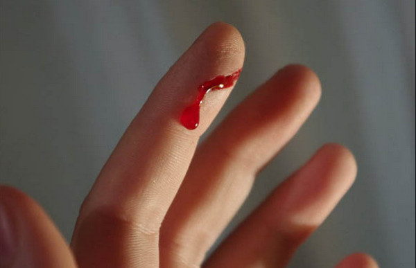 Nằm mơ nhìn thấy máu